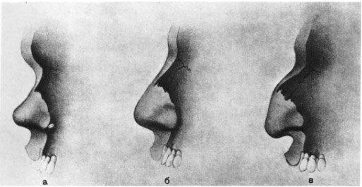 Зависимость формы носа от строения костей